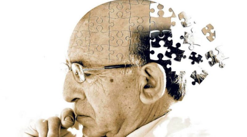 alzheimers disease research photo 3